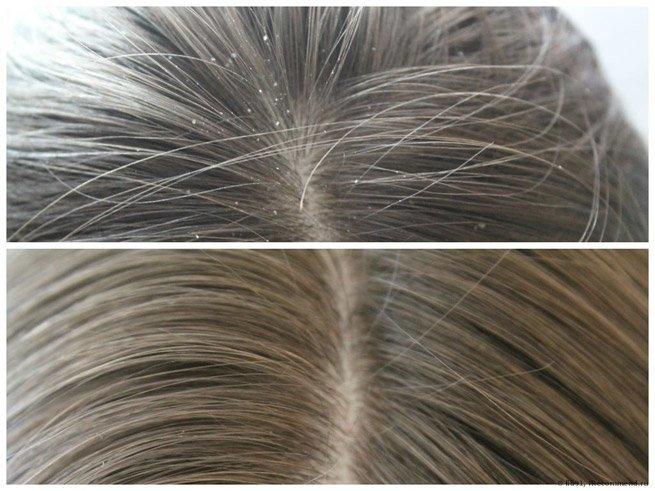 аптечка агафьи ампулы для укрепления и роста волос