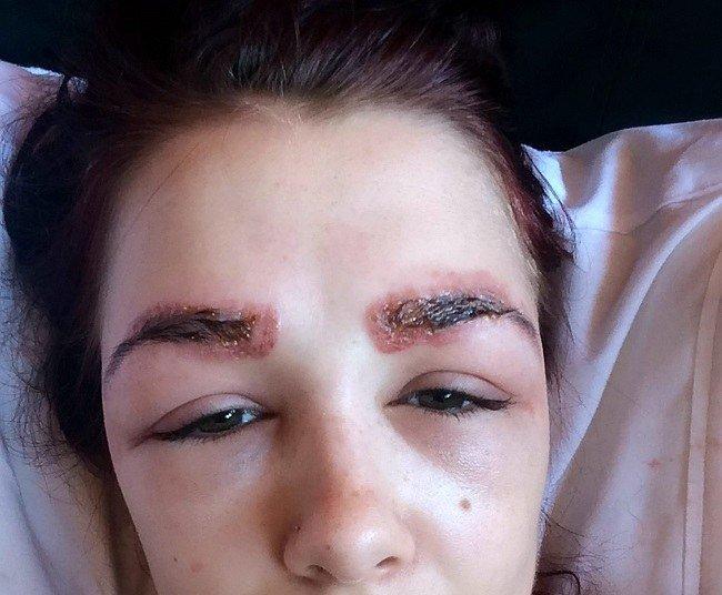 allergiya-na-hnu-dlya-brovej-ot-prichin-k-lecheniyu1