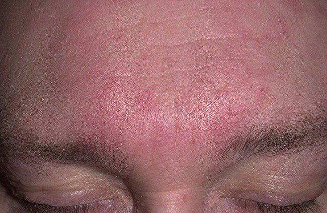 shelushenie-brovej-simptomy-prichiny-i-metody-lecheniya5
