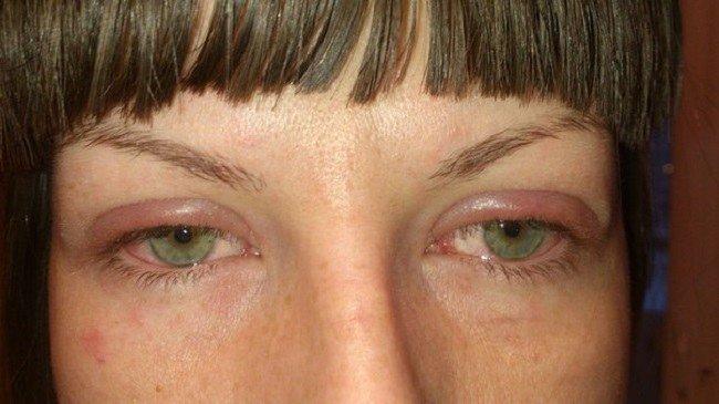 Можно ли наращивать ресницы если была аллергия