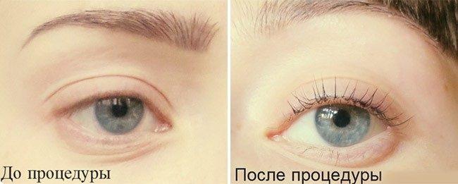 vse-o-procedure-biolaminirovaniya-resnic1