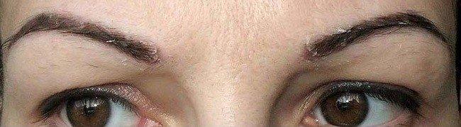 shelushenie-brovej-simptomy-prichiny-i-metody-lecheniya1